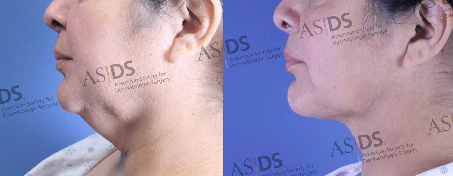 Before and 3 months after neck liposuction with 1064-1320 nm laser assisted lipolysis