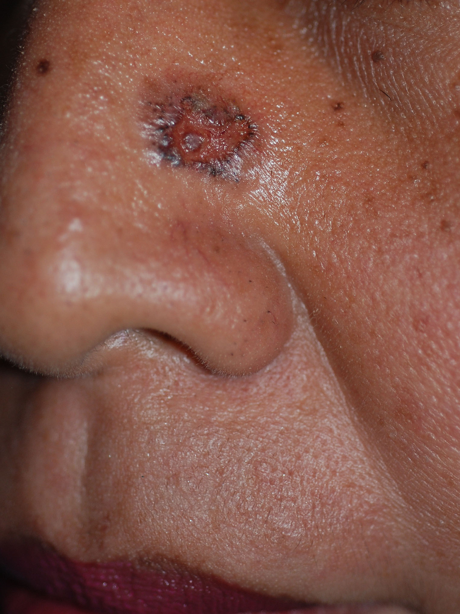 Basal cell carcinoma in a Southeast Asian person