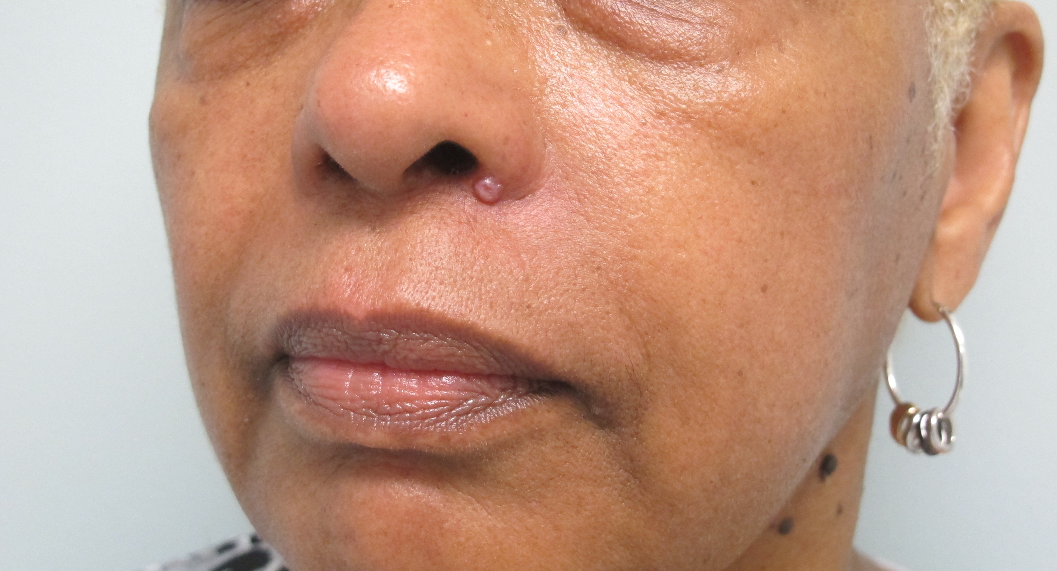 Basal cell carcinoma in a black person
