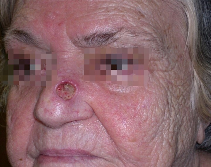 Basal cell carcinoma in a Hispanic person