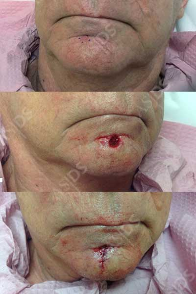 before-after-mohs-surgery-with-sutures