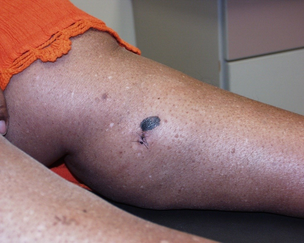 Melanoma on the leg of a black person