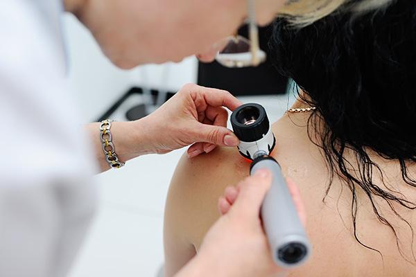 Cryosurgery For Skin Cancer
