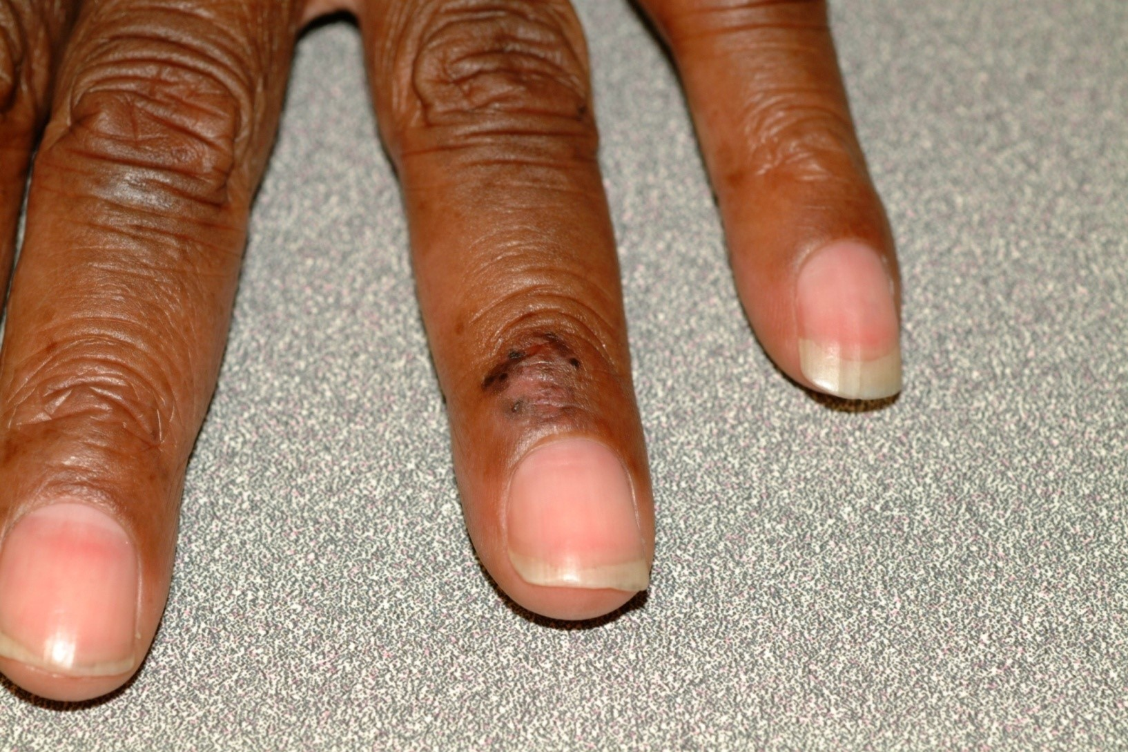 Squamous cell carcinoma in a black person