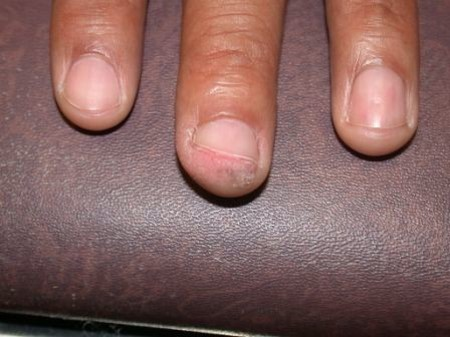 Squamous cell carcinoma mimicking a wart on a black person