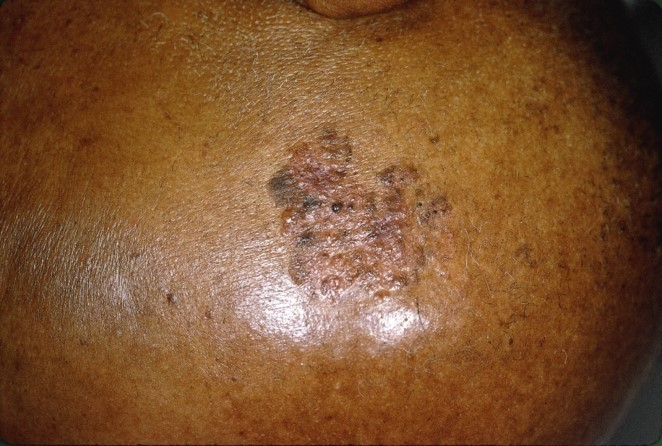 Squamous cell carcinoma on the scalp of a black person