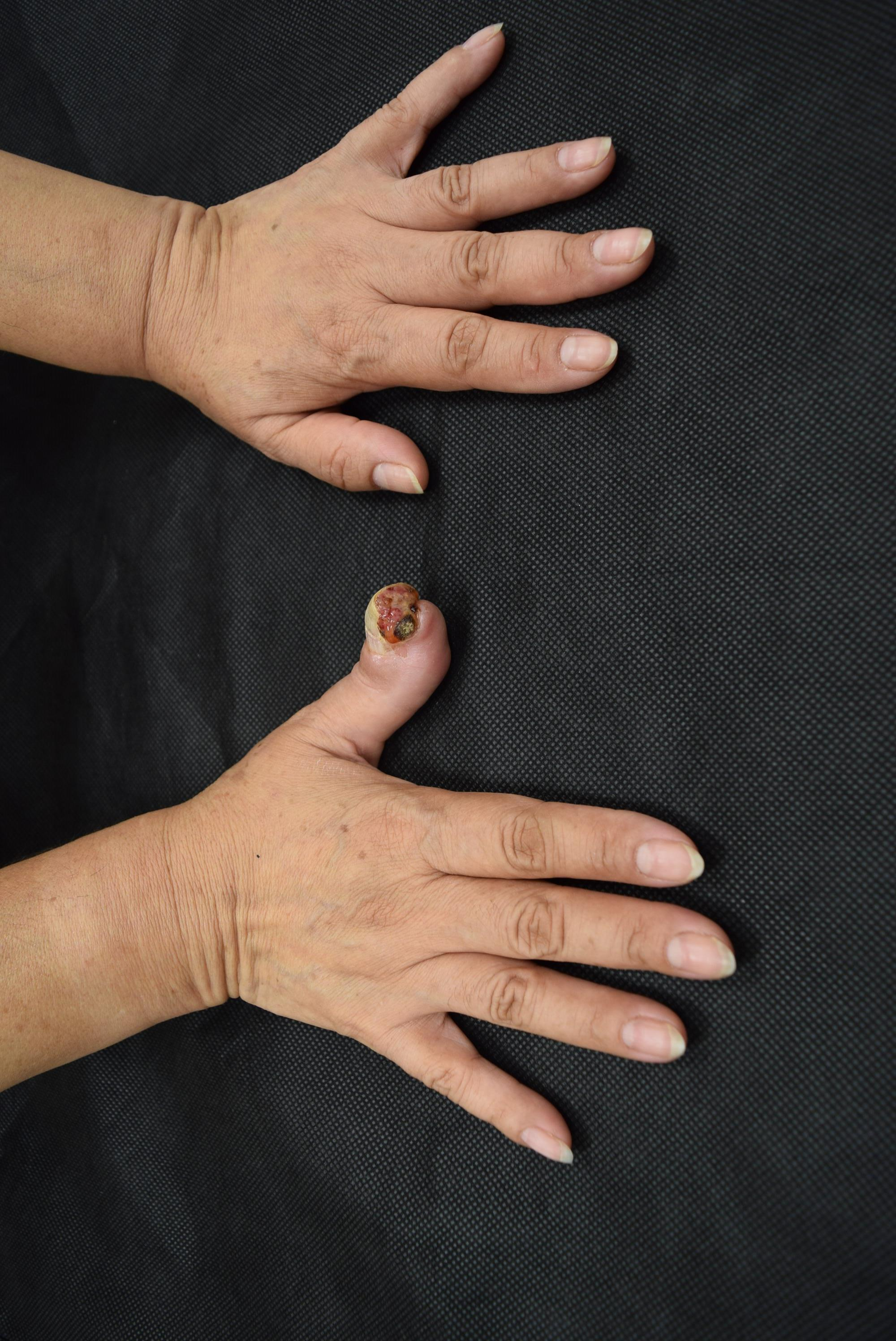 Subungual squamous cell carcinoma in a Hispanic person
