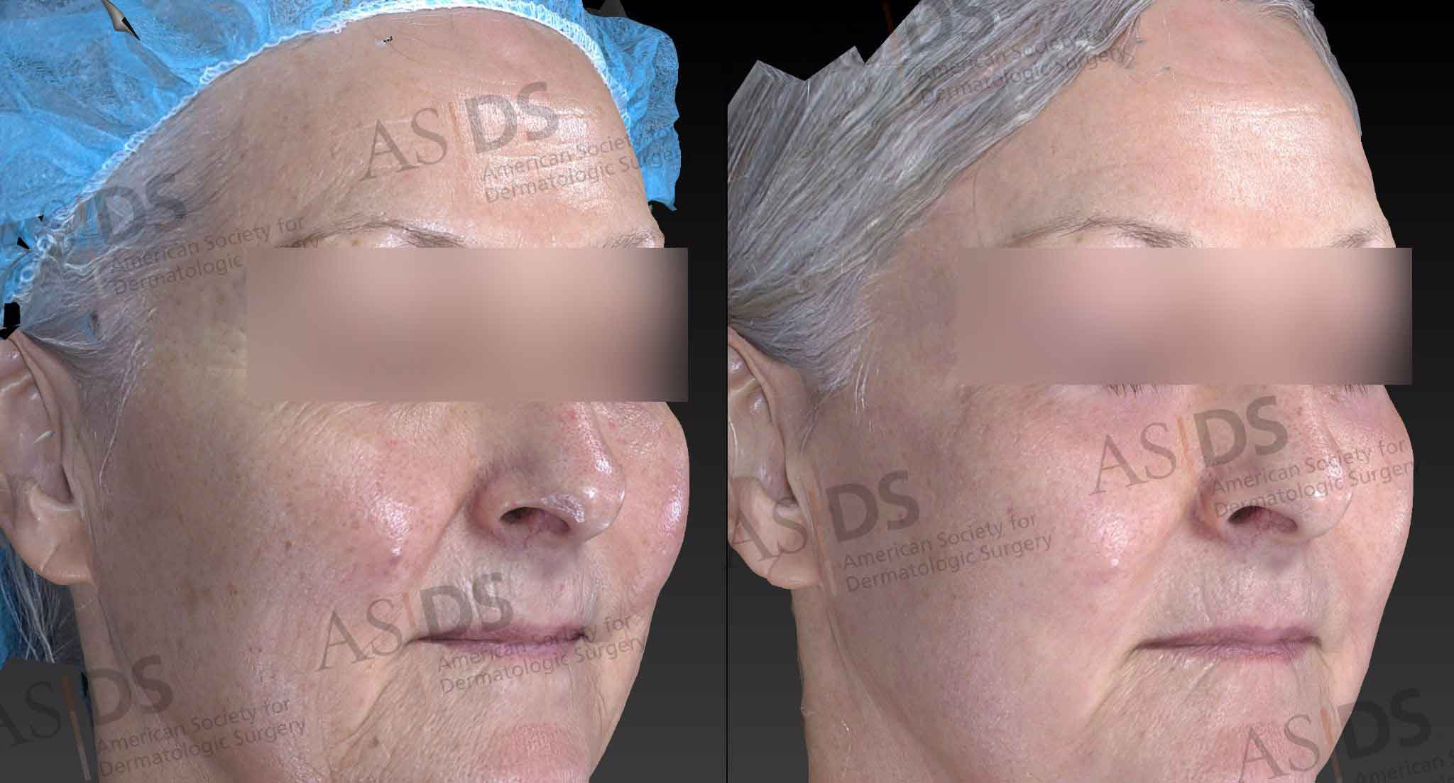 Before (left) and after (right) fractionated ablative CO2 resurfacing