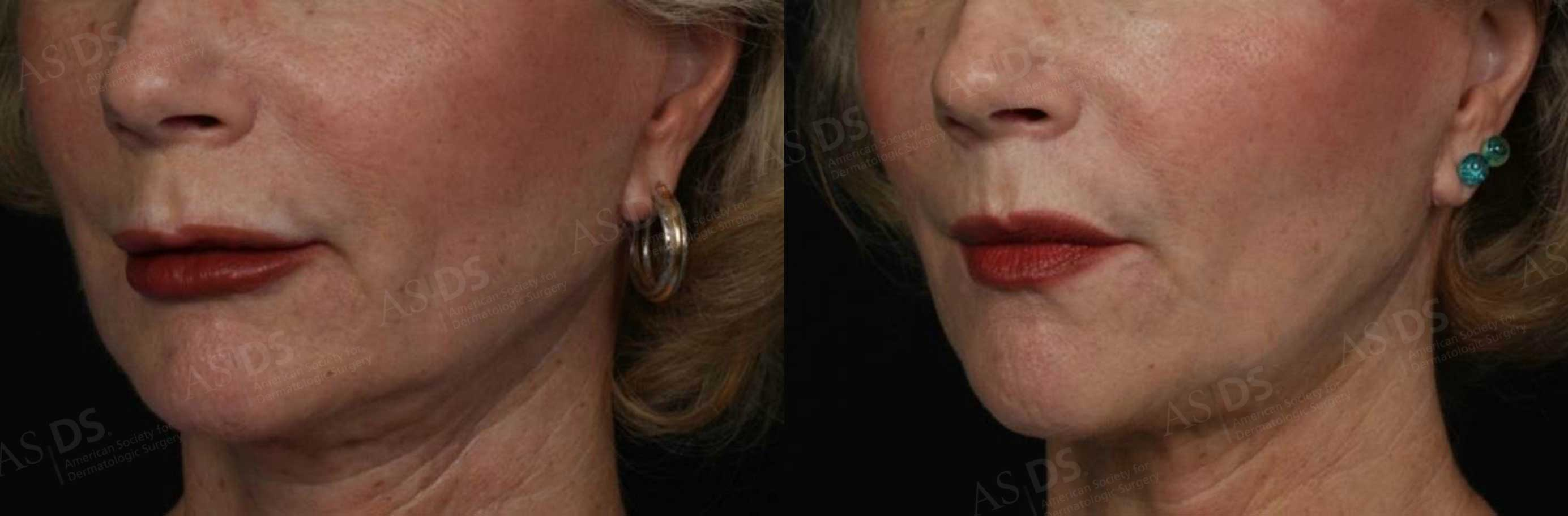 Before (left) and after (right) - Restylane to upper and lower lip.