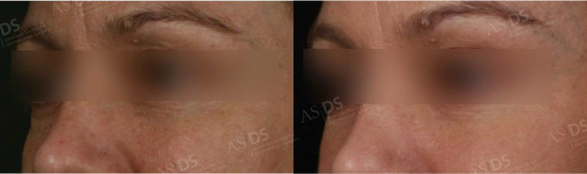 Before (left) and after (right) Botox to glabella, IPL to skin, Restylane to tear troughs and outer eyebrow.