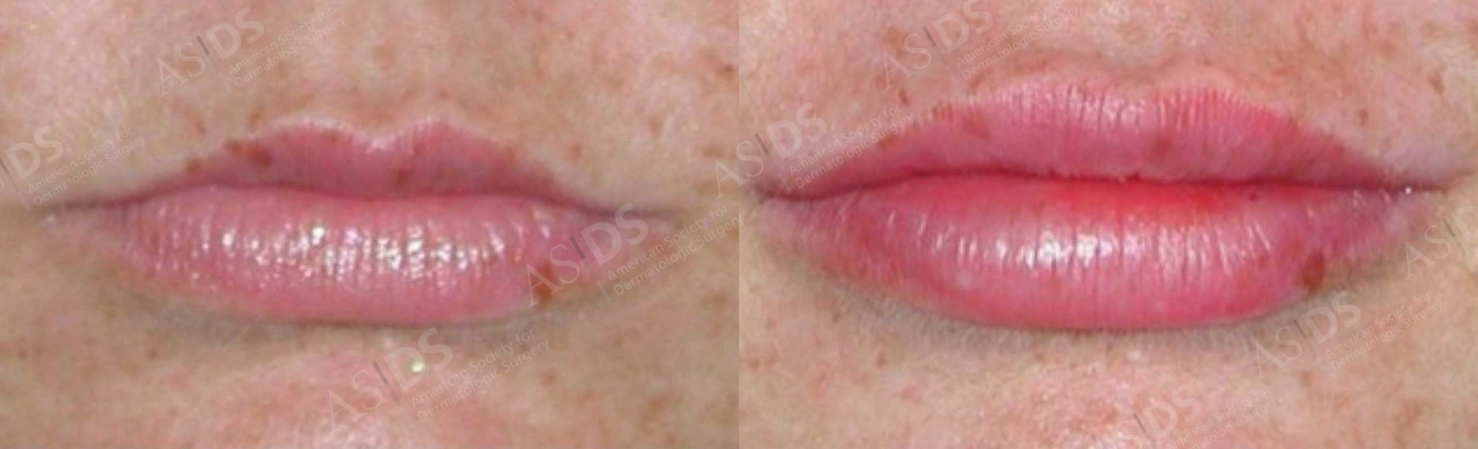 Before and after endovenous laser ablation