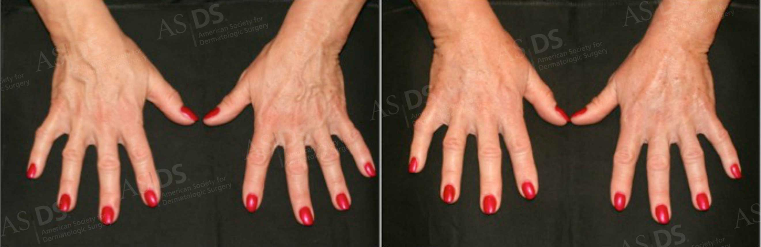 Before (left) and after (right) - hyaluronic acid injection to hands.