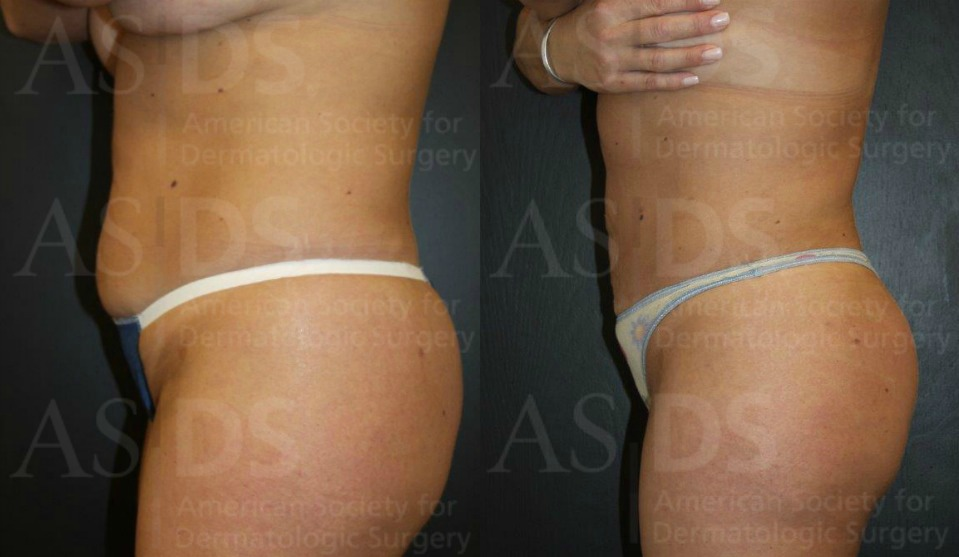 Before (left) and after (right) abdomen liposuction.