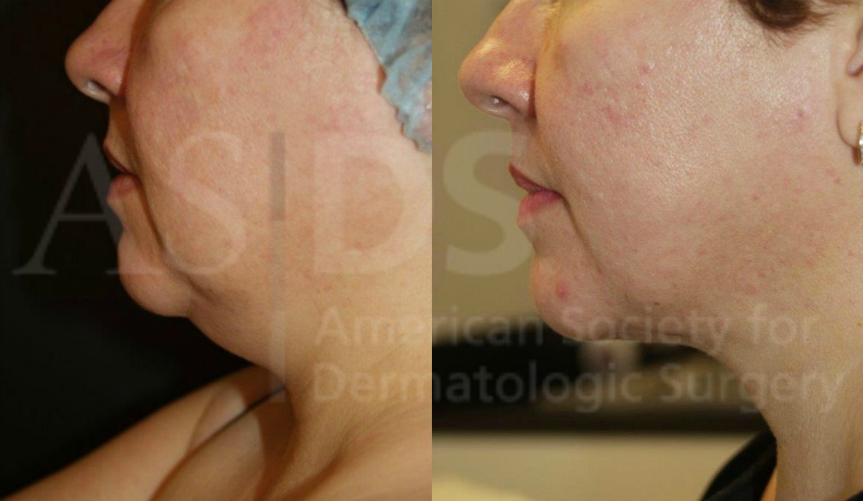 Before (left) and after (right) neck liposuction.