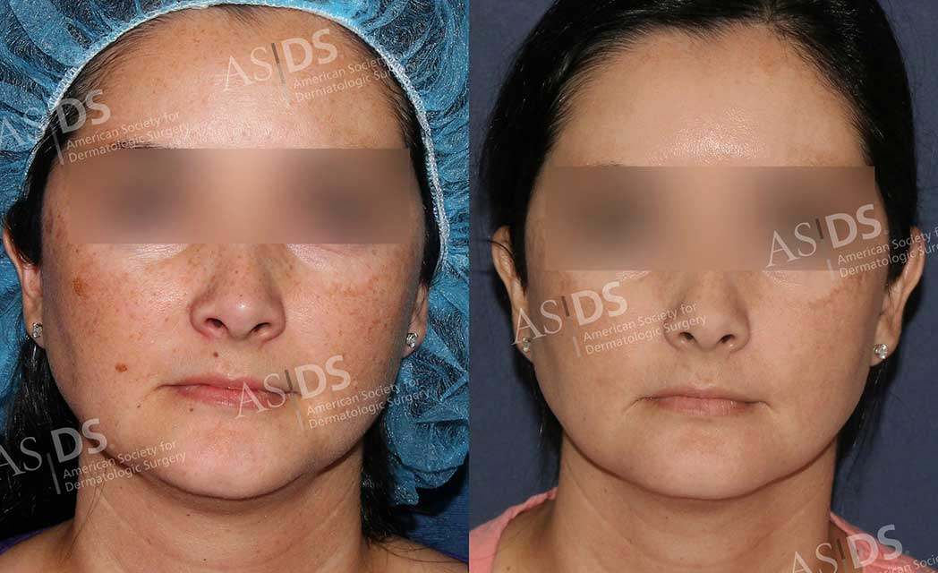 Before (left) and after (right) - IPL to face solar lentigenes, melasma, and brown spots treatment.