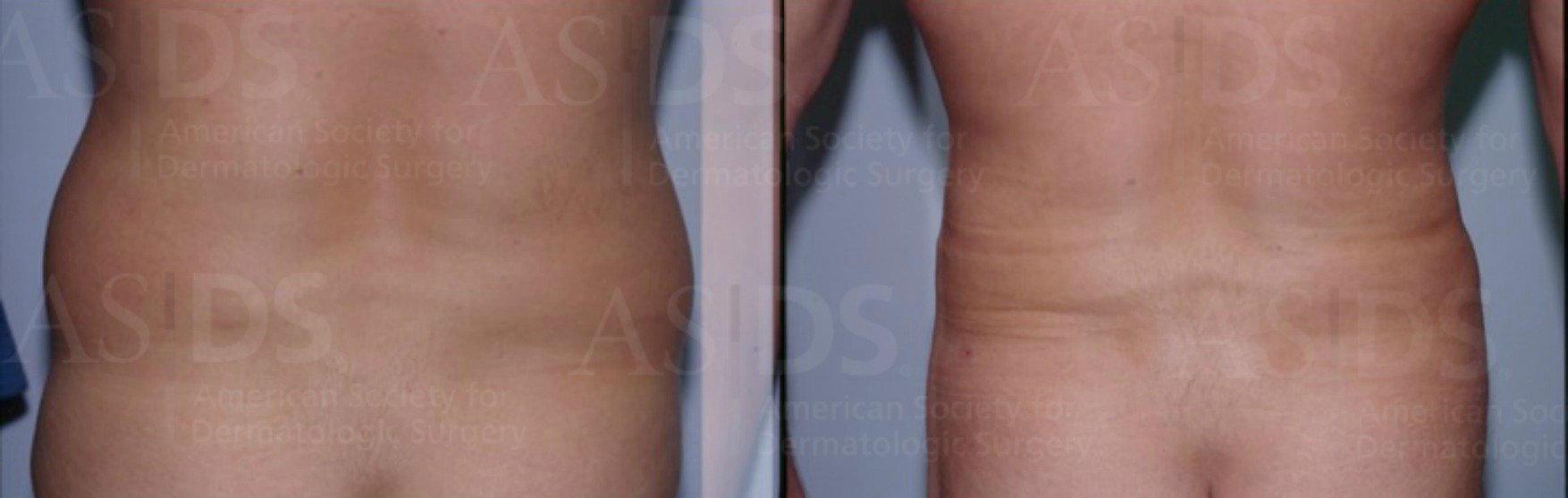 Before (left) and after (right) 6 months after tumescent liposuction - love handles.