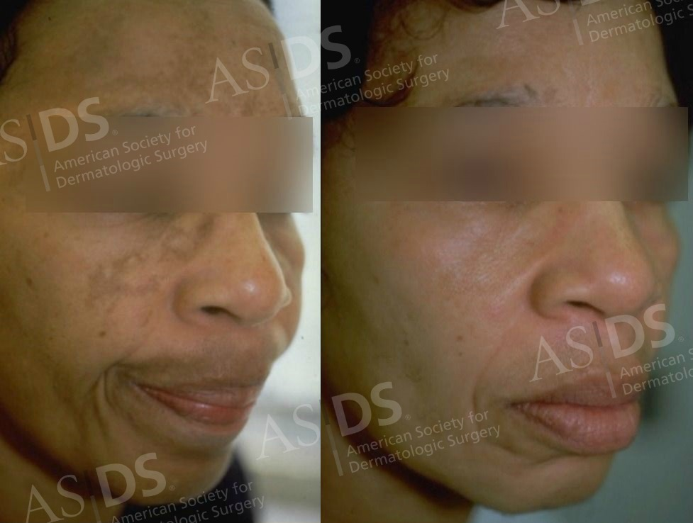 Melasma patient - 4 months after Jessner's Chemical Peel