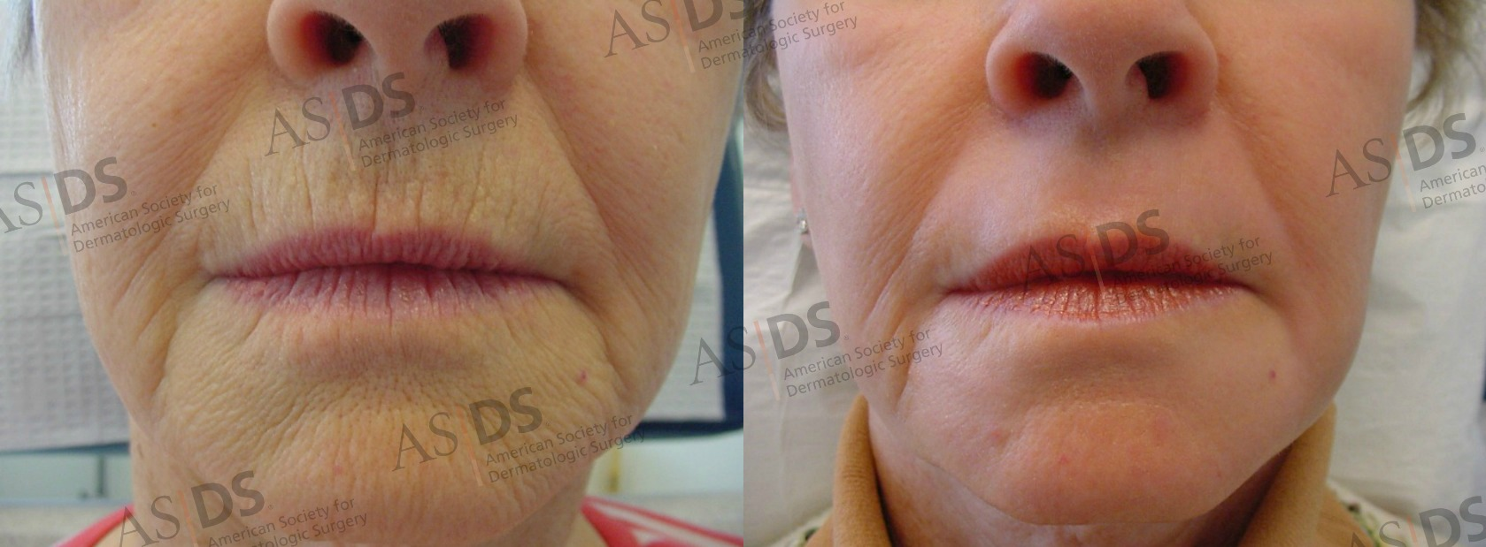 croton oil-phenol deep chemical peel - perioral lines-wrinkles