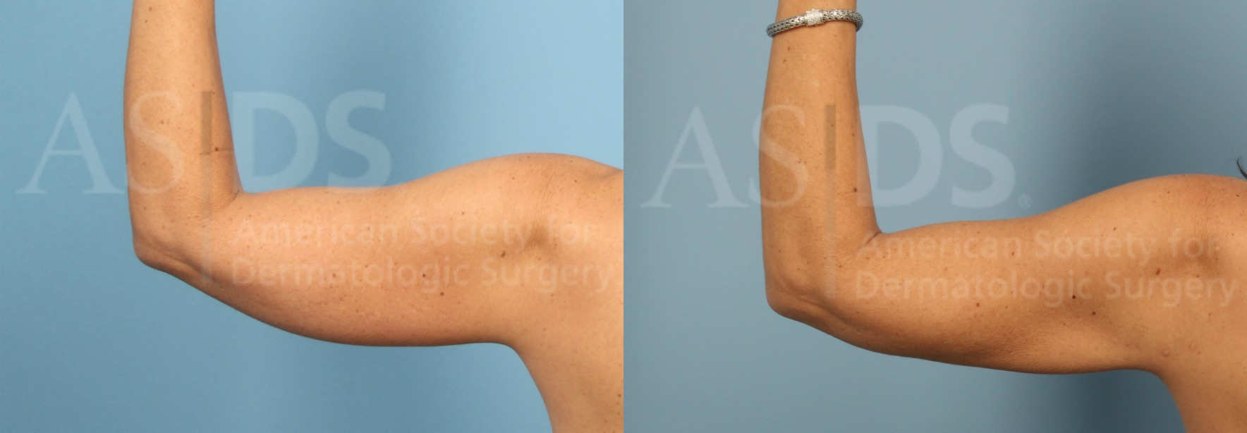 Before (left) and after (right) - 1 year after liposuction to left arm.