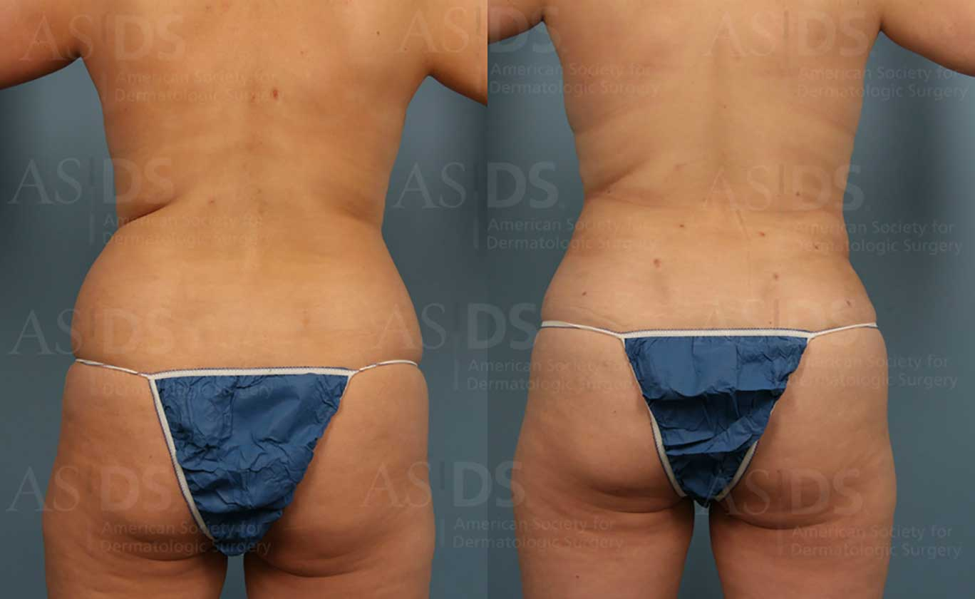 Before (left) and after (right) - liposuction to flanks and waistlines along with fat transfer to buttocks.