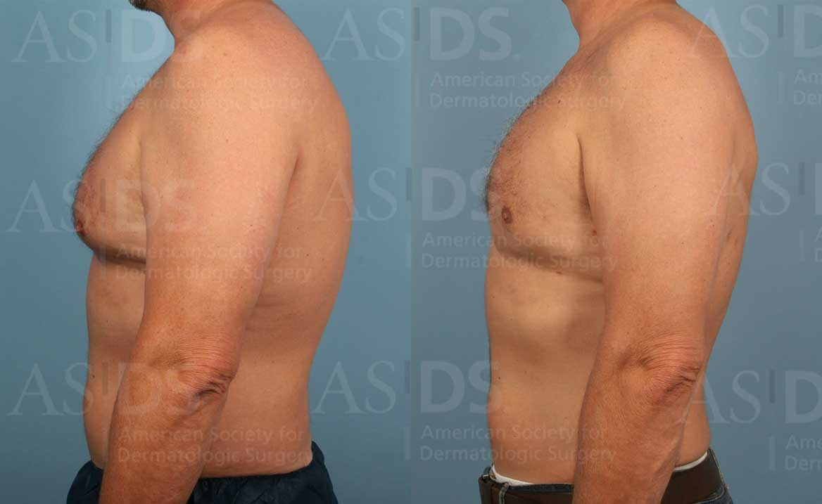 Before (left) and after (right) liposuction to chest and arm.