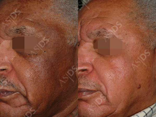 male melasma patient - after treatment with hydroquinone, TCA chemical peel, and salicylic acid chemical peel