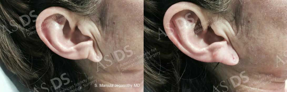Before (left) and after (right) Restylane Earlobes.