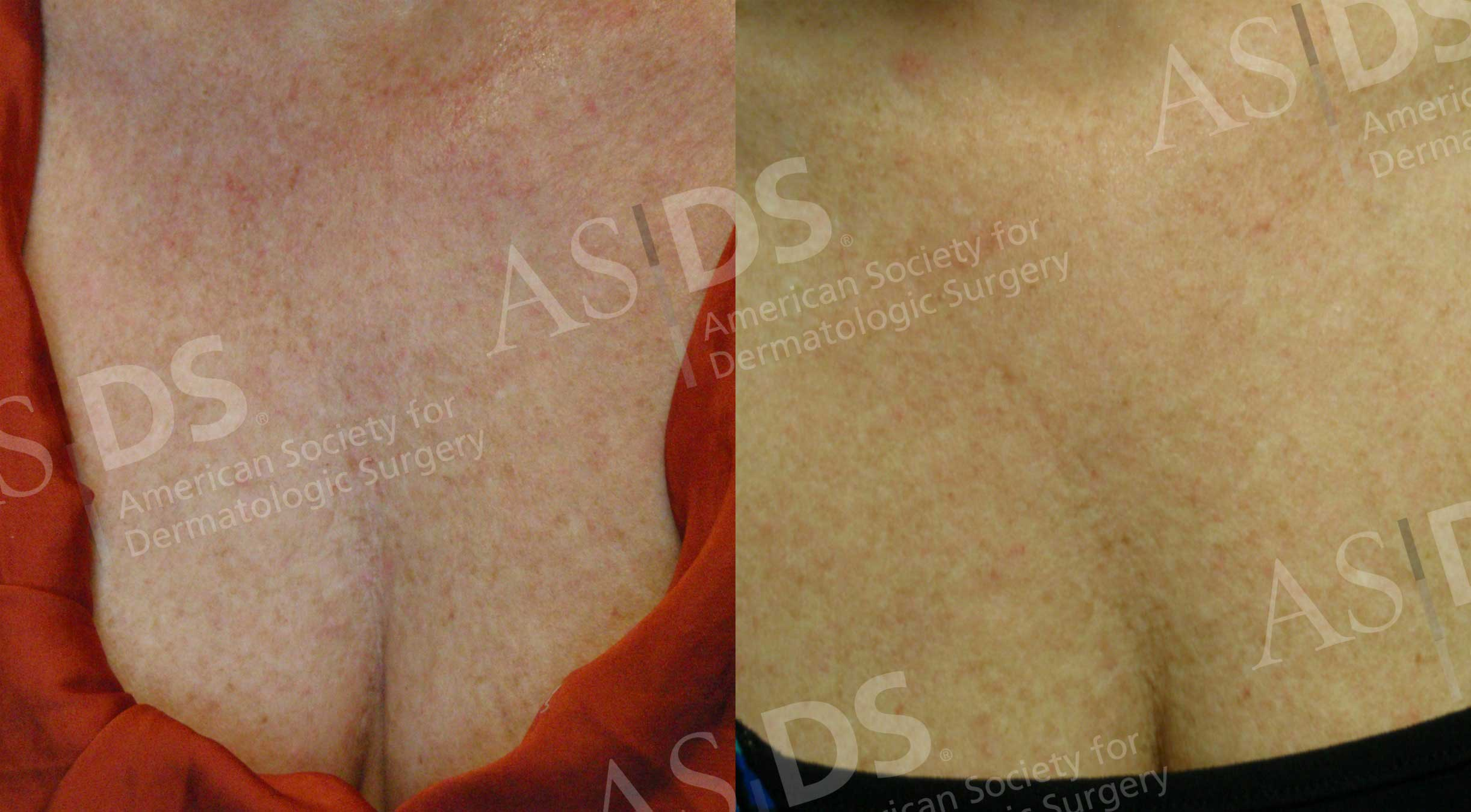 Before (left) and after (right) Pulsed Dye Laser on chest
