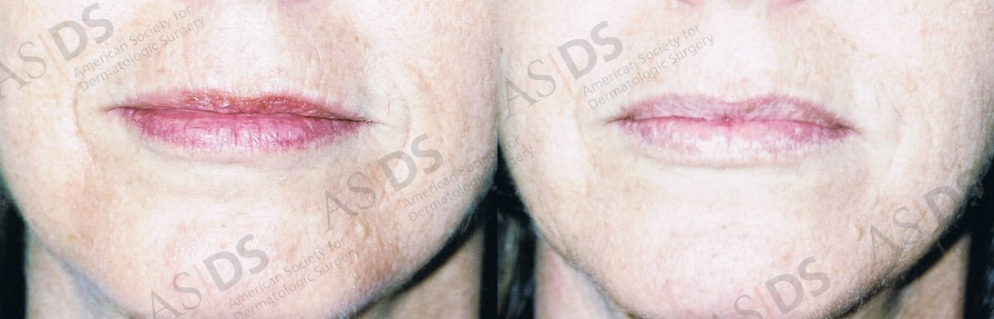 Before (left) and after (right) Restylane to Nasolabial Folds and Upper Lip.