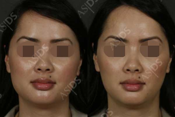Before (left) and after (right) Sculptra to full face and Botox to masseters.