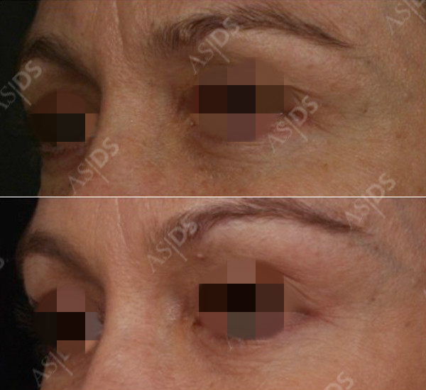 Botox treatment to the glabella, Intense Pulsed Light treatment to the skin and Restylane to tear troughs and outer eyebrow.