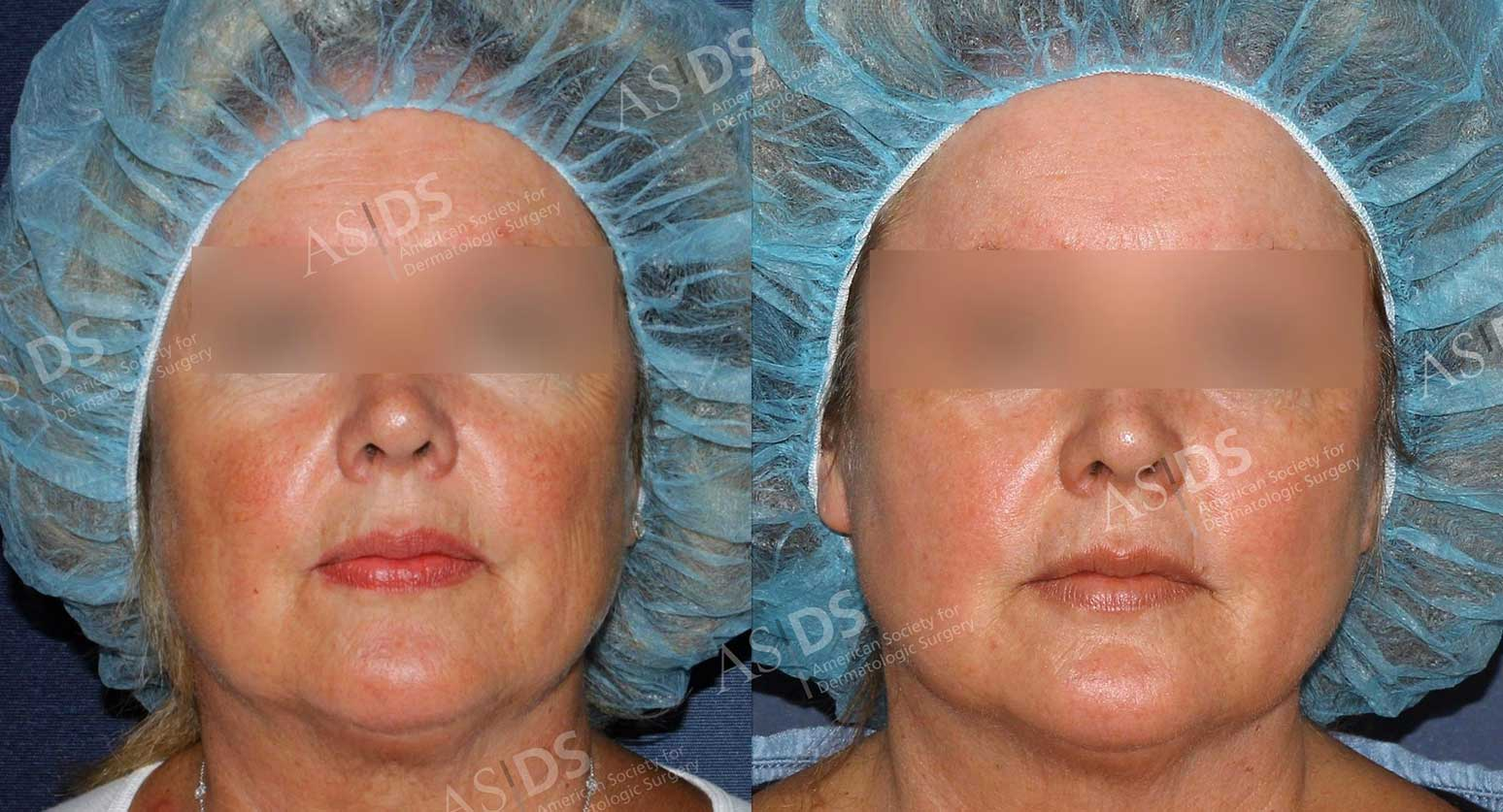 Before (left) and after (right) face - rosacea, solar lentigenes, and photodamage treatment.