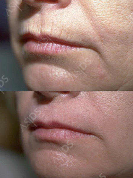 chemical peels for wrinkles
