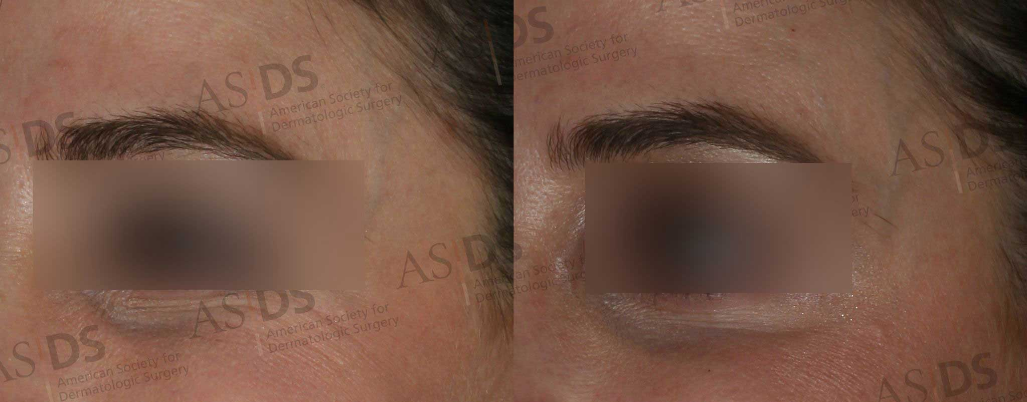 Before (left) and after (right) Crows Feet - Dysport