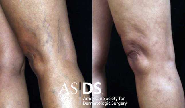 Sclerotherapy: before and two months after treatment with Asclera