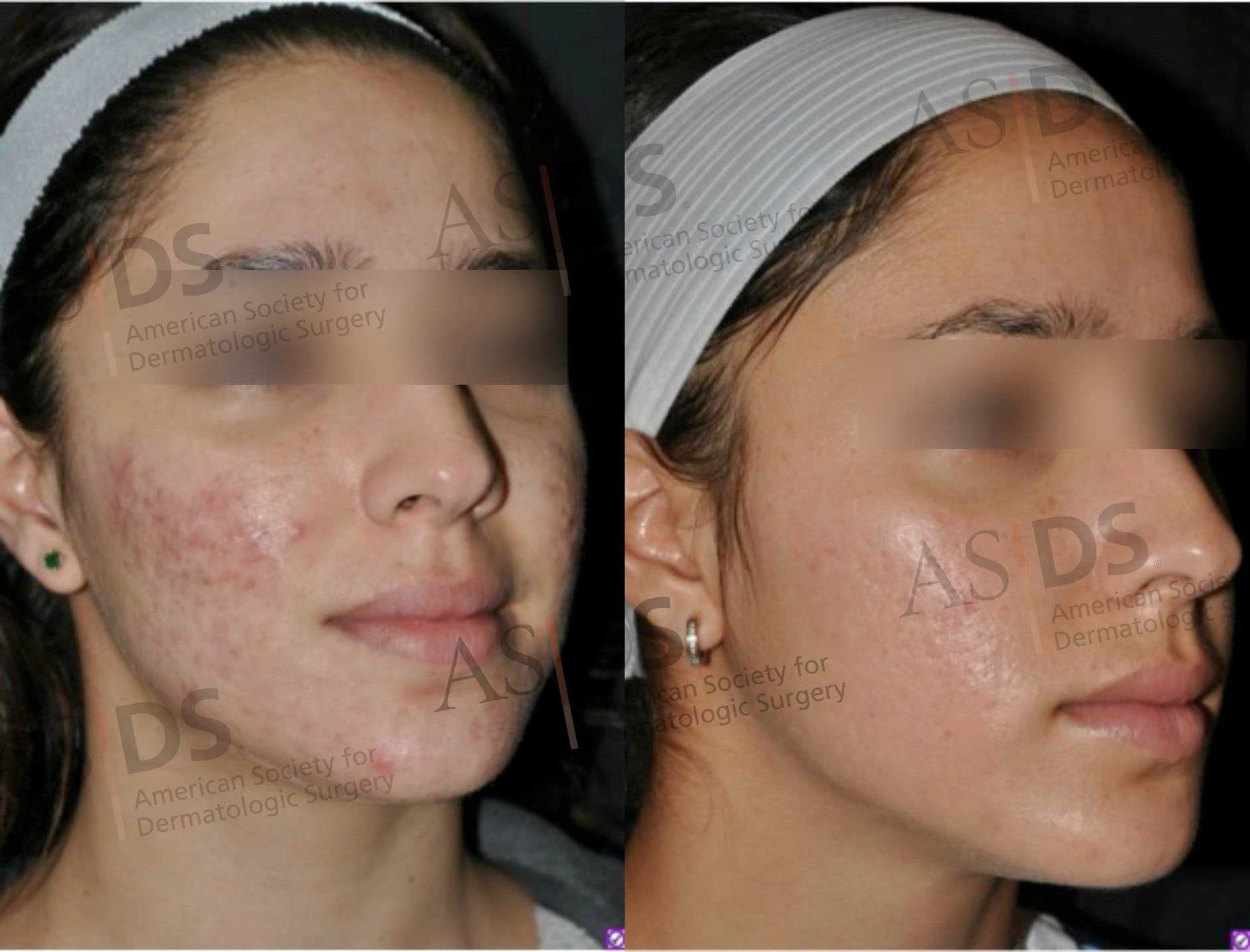 Before (left) and after (right) nonablative fractionated laser resurfacing with pulsed dye laser - Acne scars.