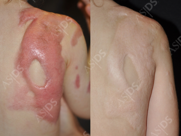 treatment to burn scars on back