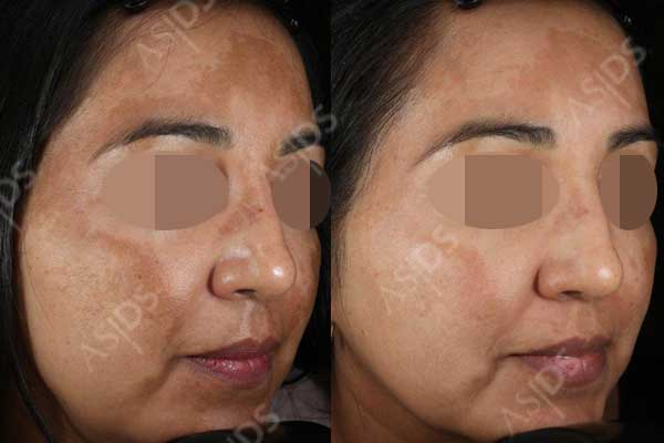 Before and after hydroquinone, retinol cream and microdermabrasion to treat melasma.