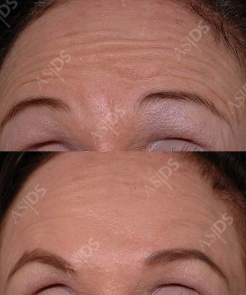 Before and after Botox treatment for forehead lines and furrows.