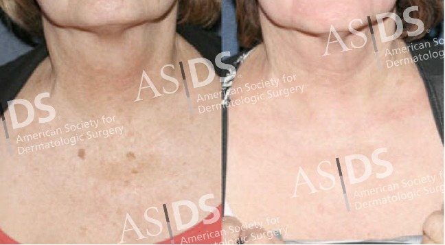 Before (left) and after (right) non-ablative fractionated laser treatment.