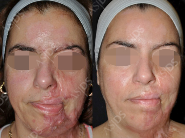 treatment to burn scars on face