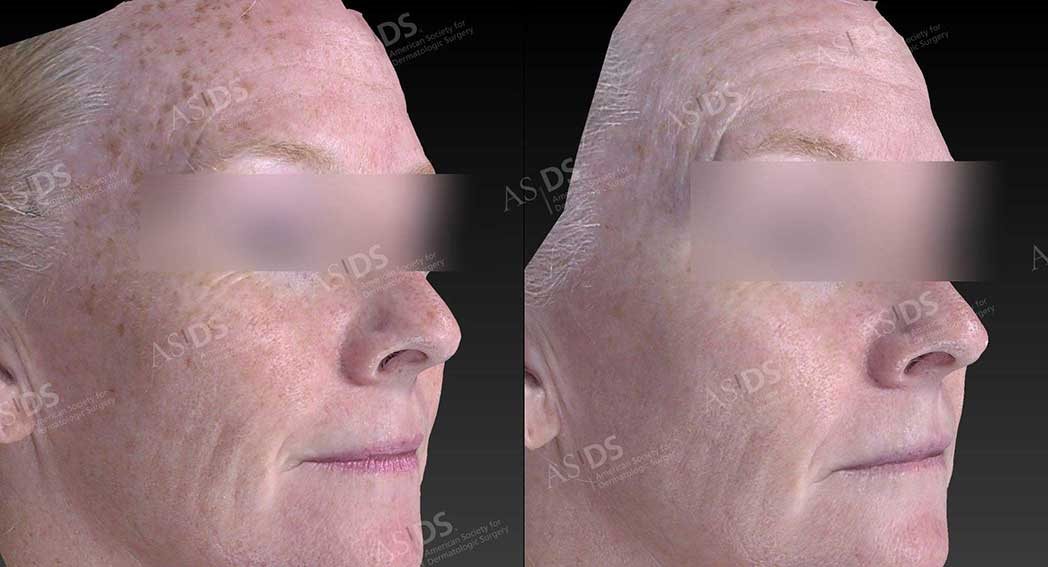 Before (left) and after (right) IPL - photoaging - solar lentigenes.