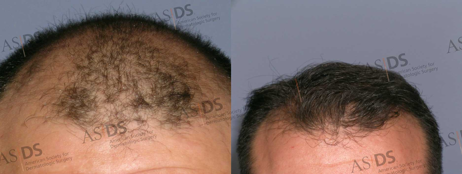 Before (left) and after (right) - front of scalp after hair transplant.