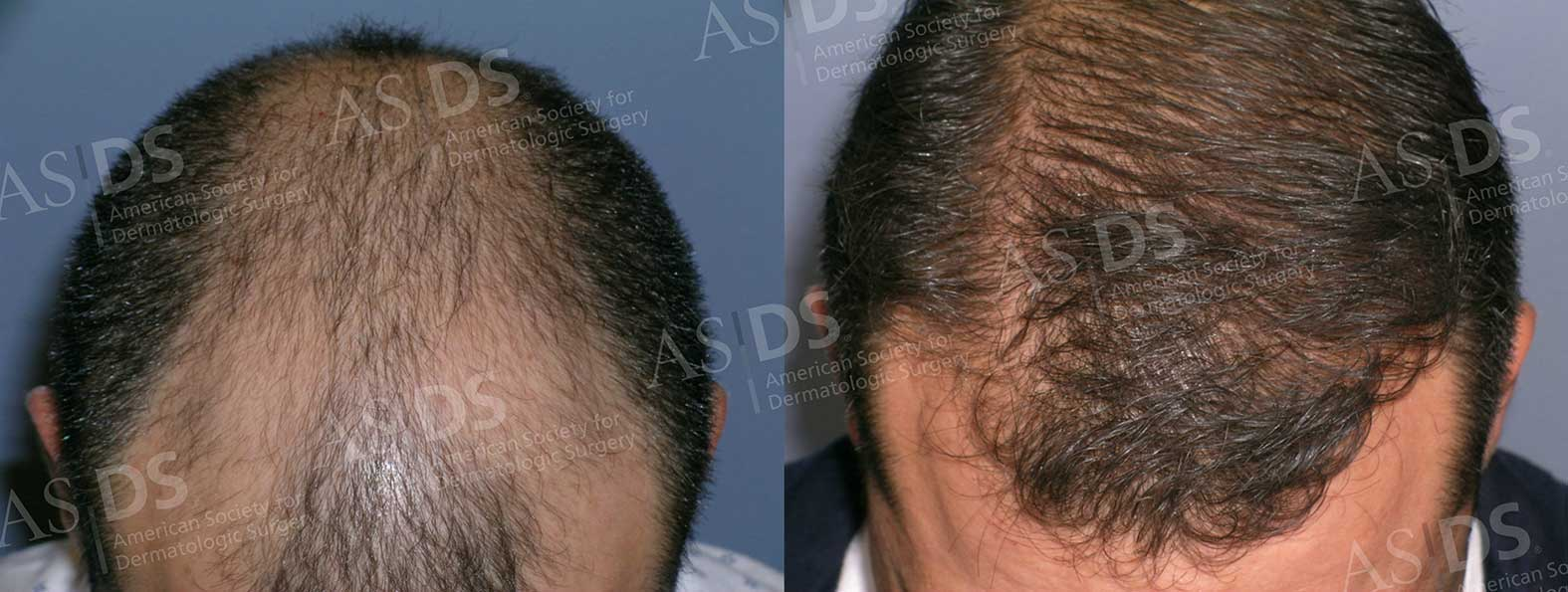 Before (left) and after (right) - top of head after hair transplant.