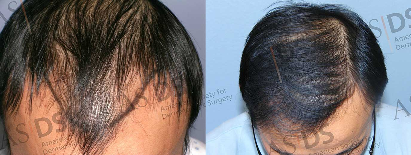 Before (left) and after (right) 1600 ARTAS Grafts - top of head after hair transplant.
